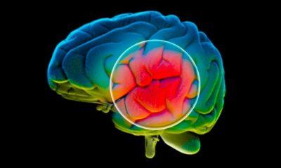 Alzheimer's Symptoms May be Checked through Antibiotics