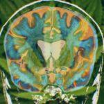 How Cannabis Treats Huntington's Disease