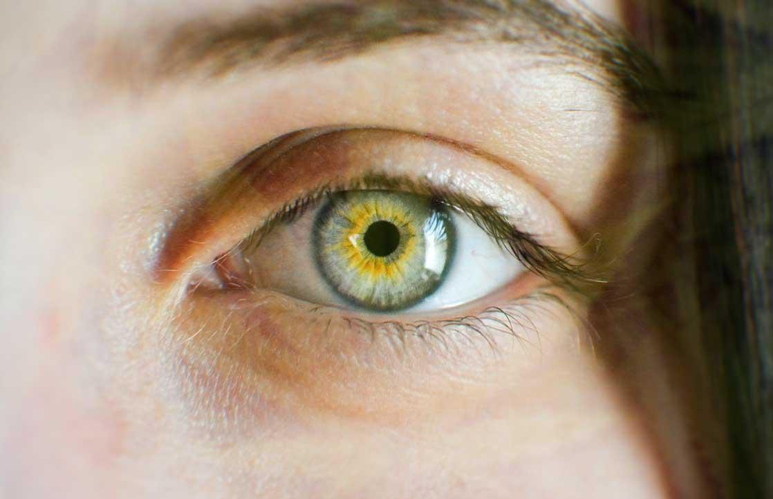 How Cannabis Treats Glaucoma