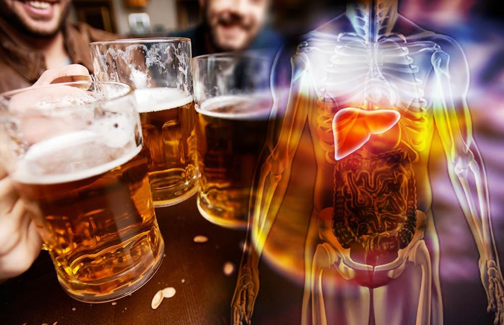 alcohol liver damage